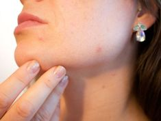 Skin Care to Help Prevent Pimples